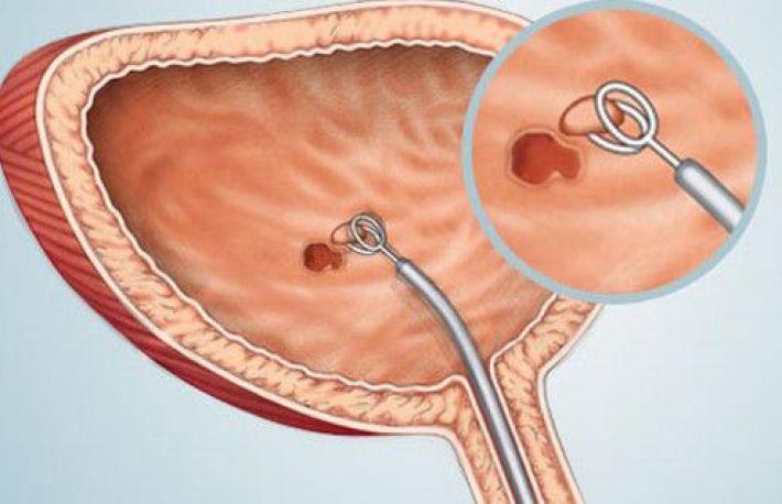 cancerul vezical simptome)