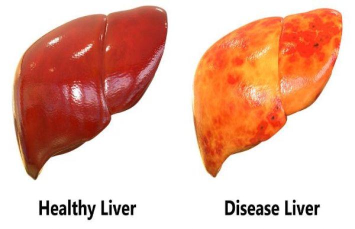 alimente care curata ficatul