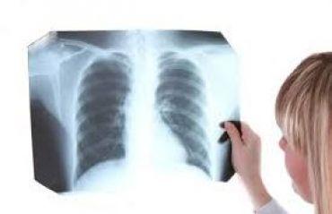 Care sunt simptomele tuberculozei #Boli #Tuberculoza