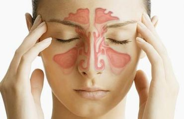 Cum sa scapi de sinuzita. 3 metode 100% naturale #Sinuzita #SinuzitaTratament