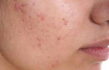 Ce alimente trebuie sa eviti daca ai acnee #Acnee #Alimente