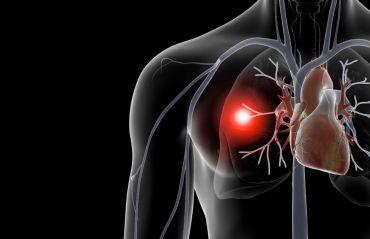 Ce este embolismul pulmonar si cum il previi #EmbolismPulmonar #BoliMortale