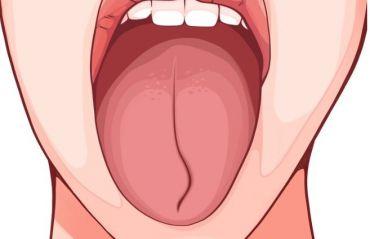 Ce semne iti poate oferi limba despre sanatatea ta #Limba #LimbaSanatate